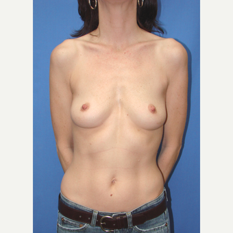 35-44 year old woman treated with Breast Implants before 3065929
