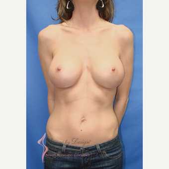 35-44 year old woman treated with Breast Implants after 3065929