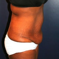 25-34 year old woman treated with Tummy Tuck before 1564526
