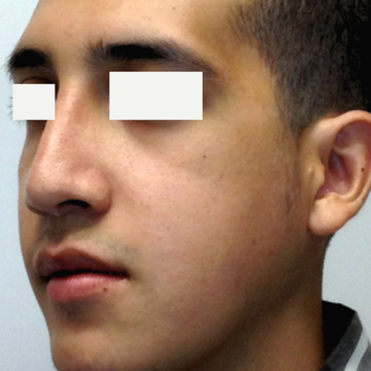 18-24 year old man treated with Orthognathic Surgery after 1615181