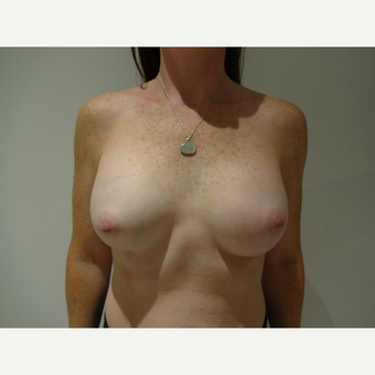 35-44 year old woman treated with Breast Implants after 3765740
