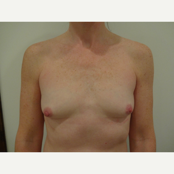 35-44 year old woman treated with Breast Implants before 3765740
