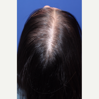 Diffuse pattern hair loss in women treated by Hair Regeneration (PRP+extracellular matrix by ACell) before 2793051