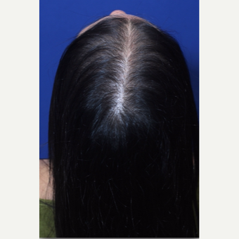 Diffuse pattern hair loss in women treated by Hair Regeneration (PRP+extracellular matrix by ACell) after 2793051