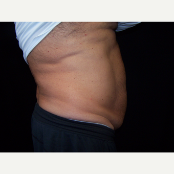 55-64 year old man treated with CoolSculpting after 3406153