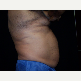 55-64 year old man treated with CoolSculpting before 3406153