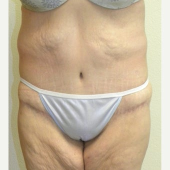 Lower Body Lift in a 36 Year-old Woman after Lap-band Surgery and Weight Loss after 1557130