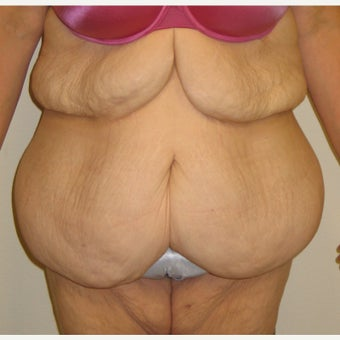 Lower Body Lift in a 36 Year-old Woman after Lap-band Surgery and Weight Loss before 1557130
