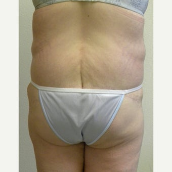 Lower Body Lift in a 36 Year-old Woman after Lap-band Surgery and Weight Loss 1557130