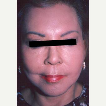 65-74 year old woman treated with Chemical Peel after 3543395