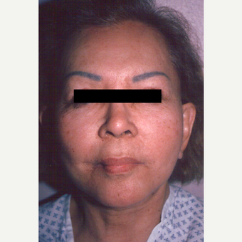 65-74 year old woman treated with Chemical Peel before 3543395