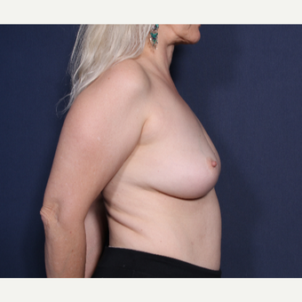 55-64 year old woman treated with Breast Implant Removal (View 2 of 2)