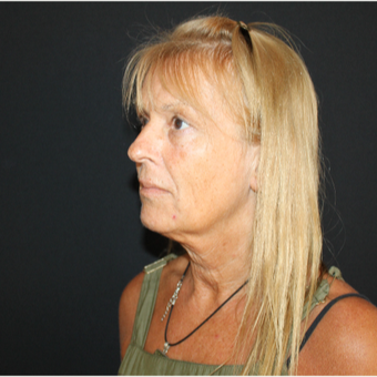 55-64 year old woman treated with Facelift before 3493638