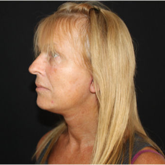 55-64 year old woman treated with Facelift after 3493638