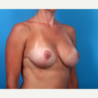 35-44 year old woman treated with Breast Implant Revision after 3366689