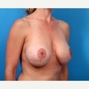 35-44 year old woman treated with Breast Implant Revision before 3366689