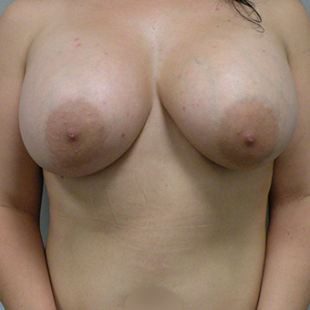 35-44 year old woman treated with Mentor Breast Implants after 3536620