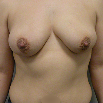 35-44 year old woman treated with Mentor Breast Implants before 3536620