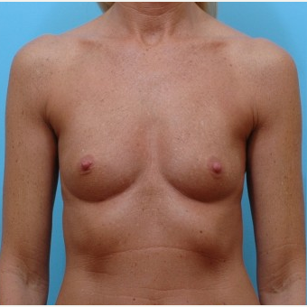 45-54 year old woman treated with Breast Augmentation before 3487380