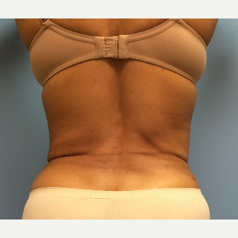 62 year old woman treated with Liposuction of the waist after 3169349