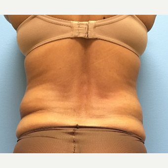 62 year old woman treated with Liposuction of the waist before 3169349