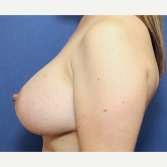 42 year old woman with a bilateral breast augmentation using Ideal Implants after 3060506
