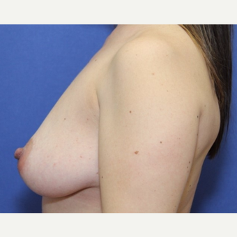 42 year old woman with a bilateral breast augmentation using Ideal Implants before 3060506