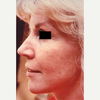 55-64 year old woman treated with Chemical Peel before 3543827