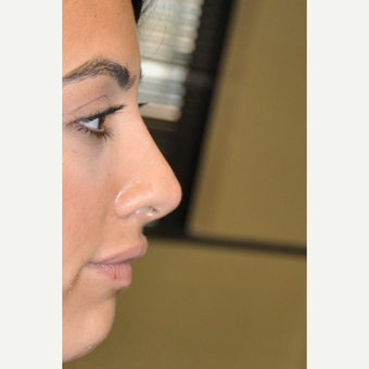 25-34 year old man treated with Rhinoplasty after 3566811