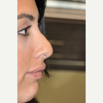25-34 year old man treated with Rhinoplasty before 3566811
