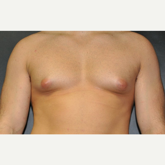 Bilateral Gynecomastia Correction before 2969865