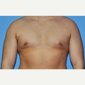 Bilateral Gynecomastia Correction after 2969865