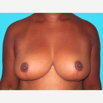 Breast Reduction after 3809995