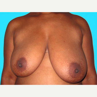 Breast Reduction before 3809995