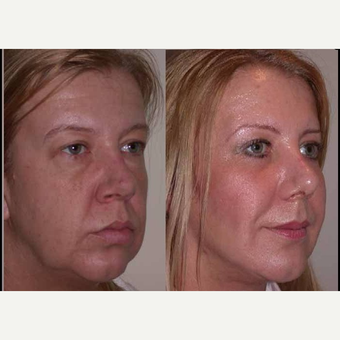55-64 year old woman treated with Facelift before 3602519