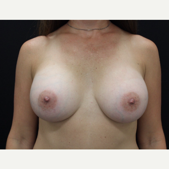 35-44 year old woman treated with Breast Augmentation after 3665145