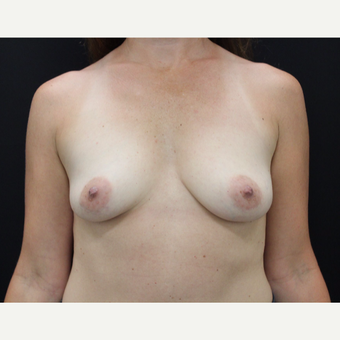 35-44 year old woman treated with Breast Augmentation before 3665145