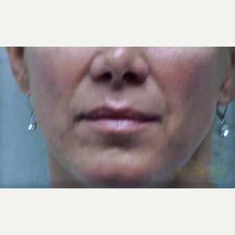 45-54 Year Old Woman Received Juvederm For Her Nasolabial Folds before 2235099