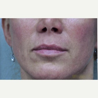 45-54 Year Old Woman Received Juvederm For Her Nasolabial Folds after 2235099
