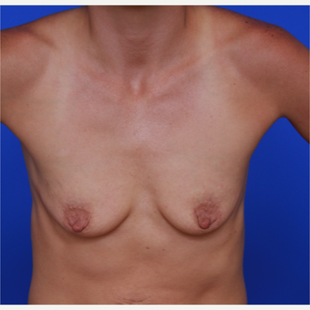 28- year old woman treated with Breast Augmentation before 3320491