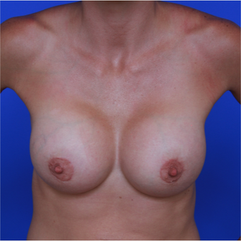 28- year old woman treated with Breast Augmentation after 3320491