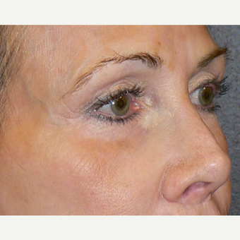 55-64 year old woman treated with Microneedling using the Venus Viva RF Microneedling treatment before 3002089
