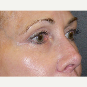 55-64 year old woman treated with Microneedling using the Venus Viva RF Microneedling treatment after 3002089