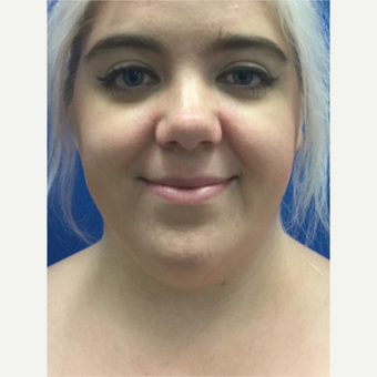 25-34 year old woman treated with Liposculpture of the Chin and Neck before 3414302
