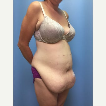 40 year old woman treated with Tummy Tuck before 3036855