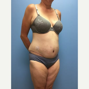 40 year old woman treated with Tummy Tuck after 3036855