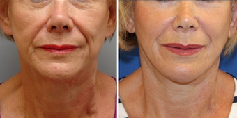Mid Face Cheek Lift before 1360168