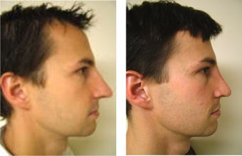Rhinoplasty before 104771