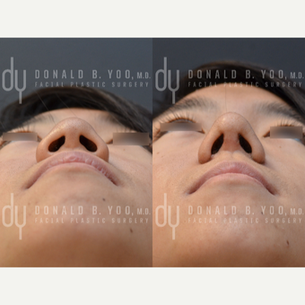Asian Rhinoplasty with Rib cartilage before 3622603