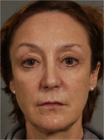 60 year old female 3 years after a Liquid Facelift using Sculpra injections after 983691